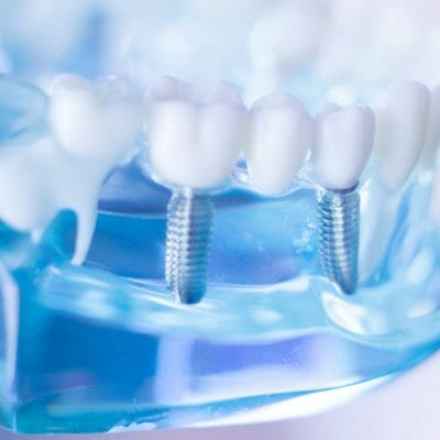 dental implants for baby boomers